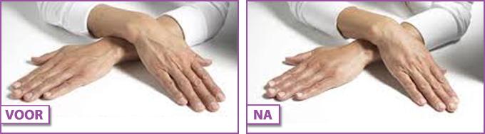 Verouderde handen-behandeling