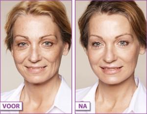 Wallen-onder-ogen-donkere-kringen-behandeling-met-fillers-Restylane-Juvederm-Gooi-Bussum-300x232