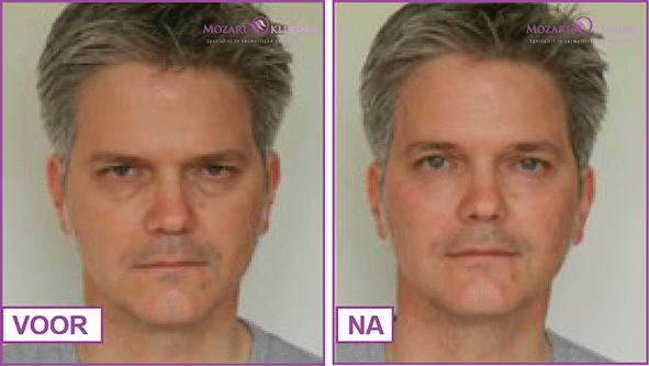 Traangoot behandeling voor en na