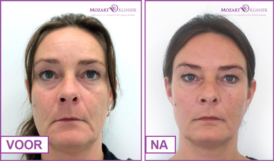 Resultaten liquid facelift
