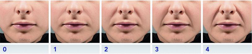 neus-lippenplooi-filler-behandeling-bussum