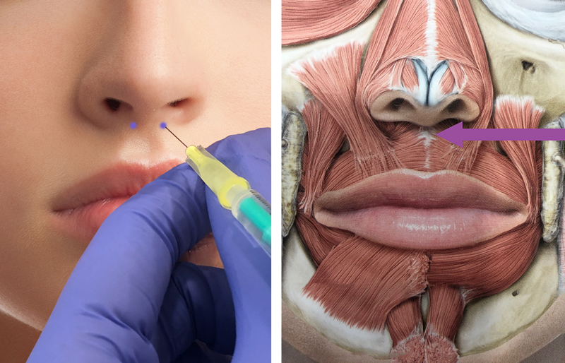 neuscorrectie-haakneus-zonder-operatie