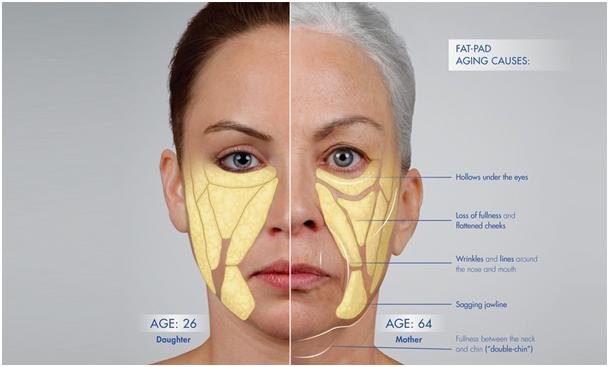 vrouw-50-60-oorzaak-veroudering
