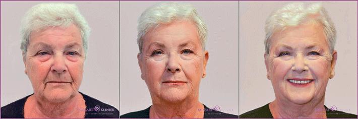 injectables-pro-age-60-vrouw-kliniek-bussum